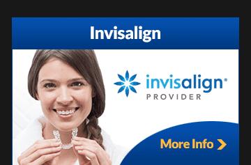 Tibbitts_Banners_Invisalign